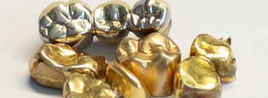 Zahngold und Aufbrennlegierung